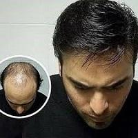 آموزش پروتز مو درآموزشگاه آرایشگری هنرمند